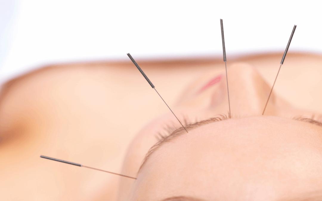 Akupunktura w walce z rakiem