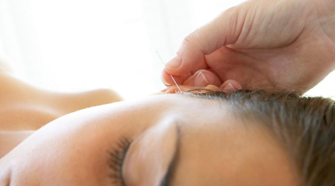 Akupunktura na ból głowy
